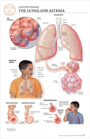 11x17 Post-It Disease Poster - The Effects of Asthma on the Lungs - Online Science Mall