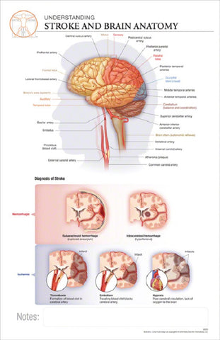 11x17 Post-It Disease Poster - Understanding the Brain and Effects of a Stroke - Online Science Mall