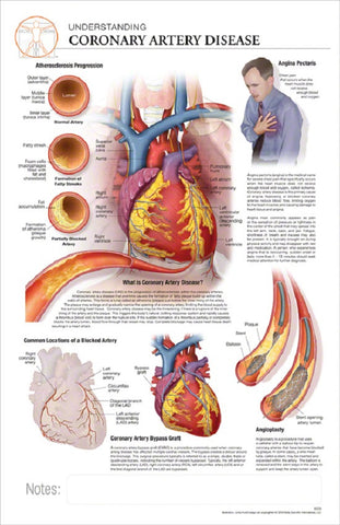 11x17 Post-It Disease Poster - Understanding the Effects of Coronary Artery Disease