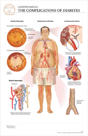 11x17 Post-It Disease Poster - Complications Associated with Diabetes - Online Science Mall