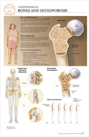 11x17 Post-It Disease Poster - Understanding the Effects of Osteoporosis on Bones