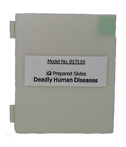 Deadly Human Diseases Prepared Slide Set, 10 Glass Microscope Slides