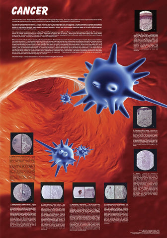 An Explanation of Cancer and its Types - Biology Poster, 38x26""