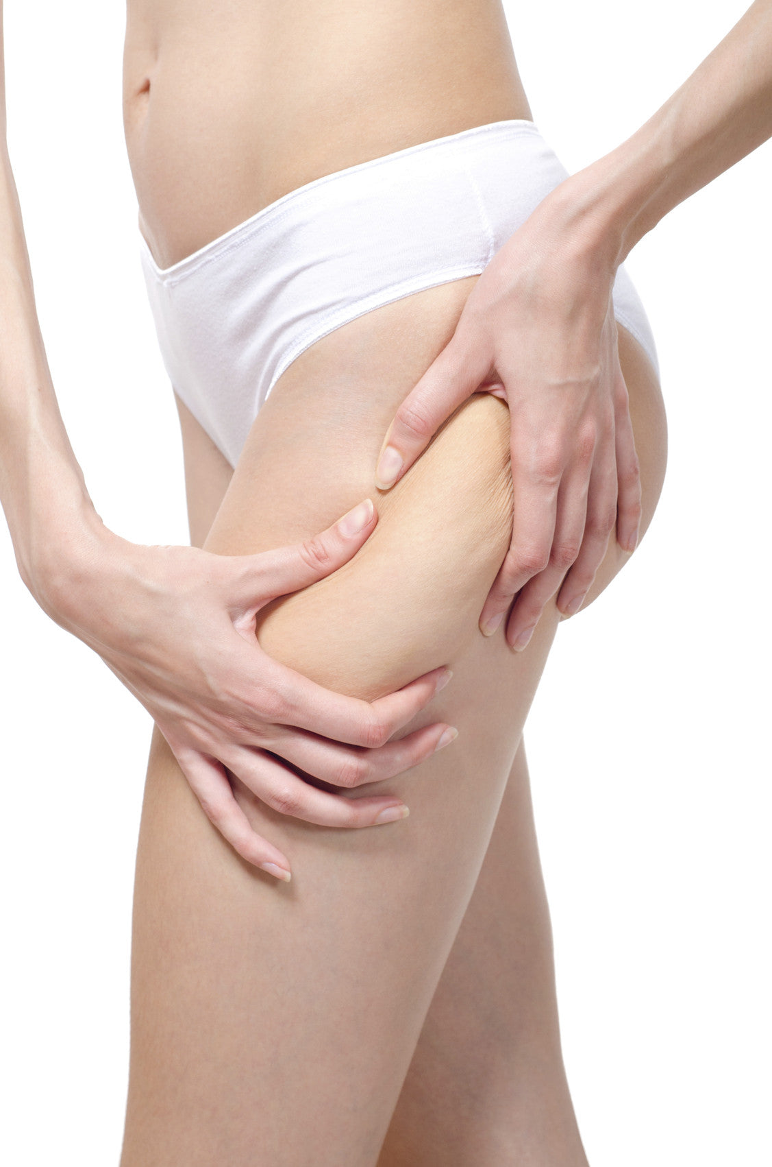 Do You Have Unsightly Cellulite?