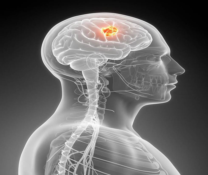 Long-term cell phone use increases brain tumor risk