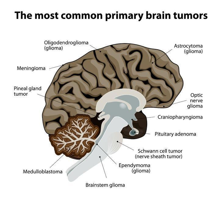 The Incidence of Meningioma, a Non-Malignant Brain Tumor, is Increasing in the U.S.