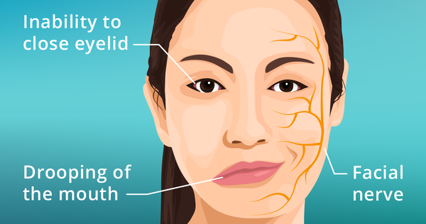The Truth About Bell's Palsy