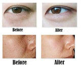 Laser Skin Mole and Dark Spot Remover