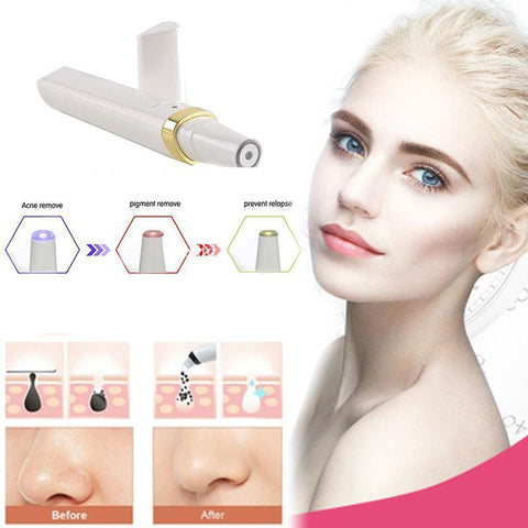 3 In 1 Acne Removal Laser Pen