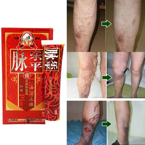 Herbal Varicose Veins Treatment Cream