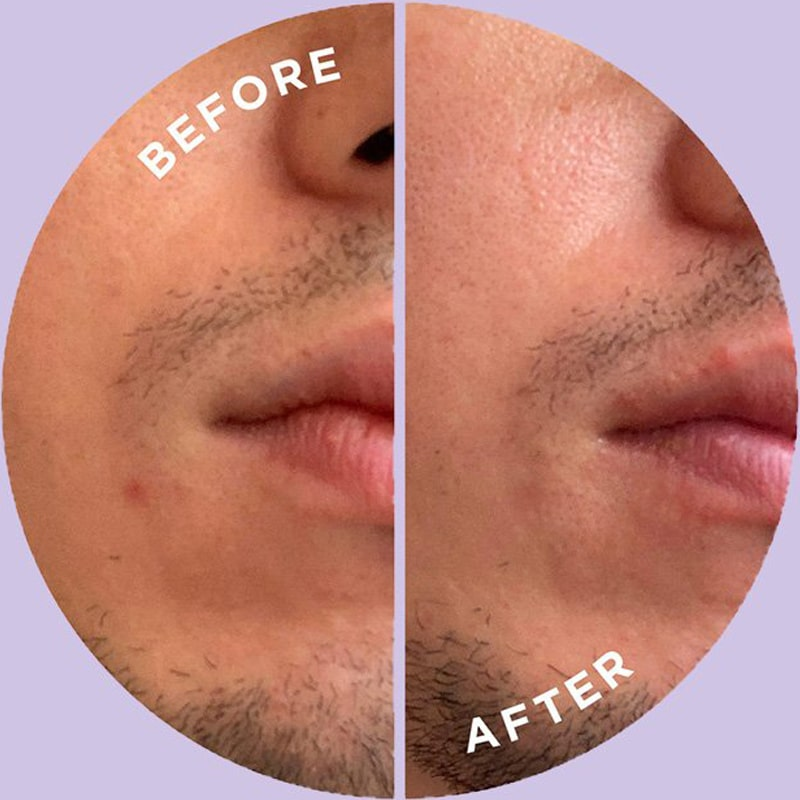 ZitSticka Hyperfade™ showing before and after use on man's face