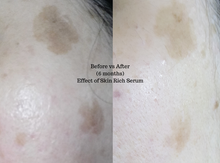 Effect of using Skin Rich Serum