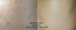 Effect of using Clear SKIN cleanser