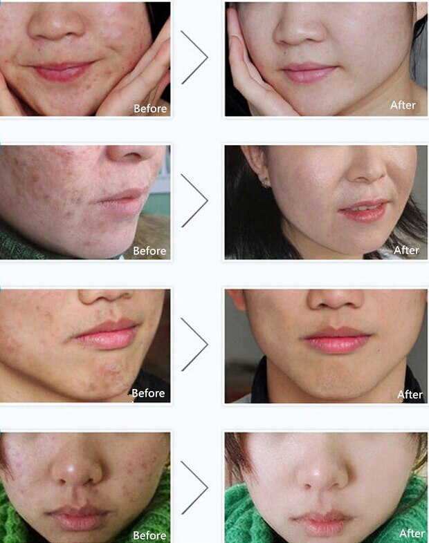Acne Treatment Acne Scars Cream Anti Acne Removal Gel Whitening Moistu