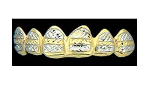 Customized 14k Gold Overlay Removable Gold Teeth / Caps / Grillz 6 Teeth /h16/  Jewelry Woxpa  Woxpa - Jewelry - Woxpa - Jewelry