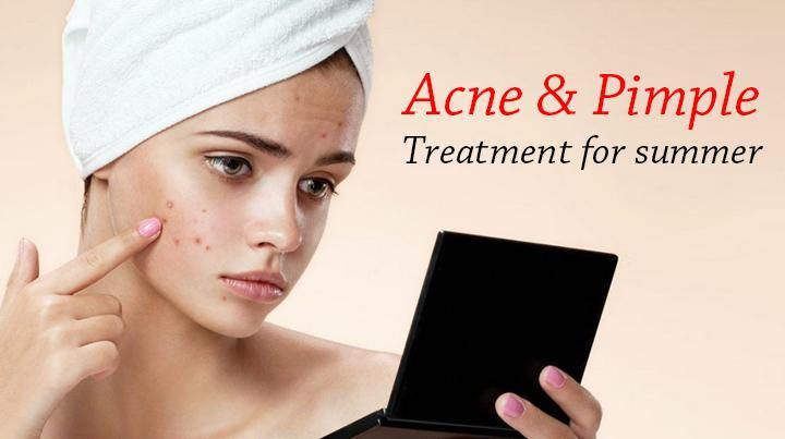 Blog 56: Acne & pimple treatment for summer - Keya Seth Aromatherapy