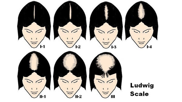 Ludwig scale of alopecia