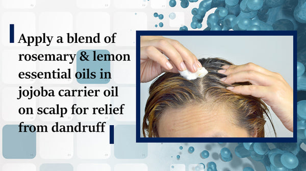essential oil for dandruff