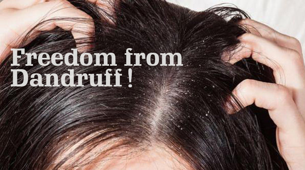 treat dandruff naturally