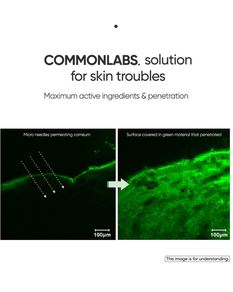 COMMONLABS Vitamin E Micro Needle Spot Cream