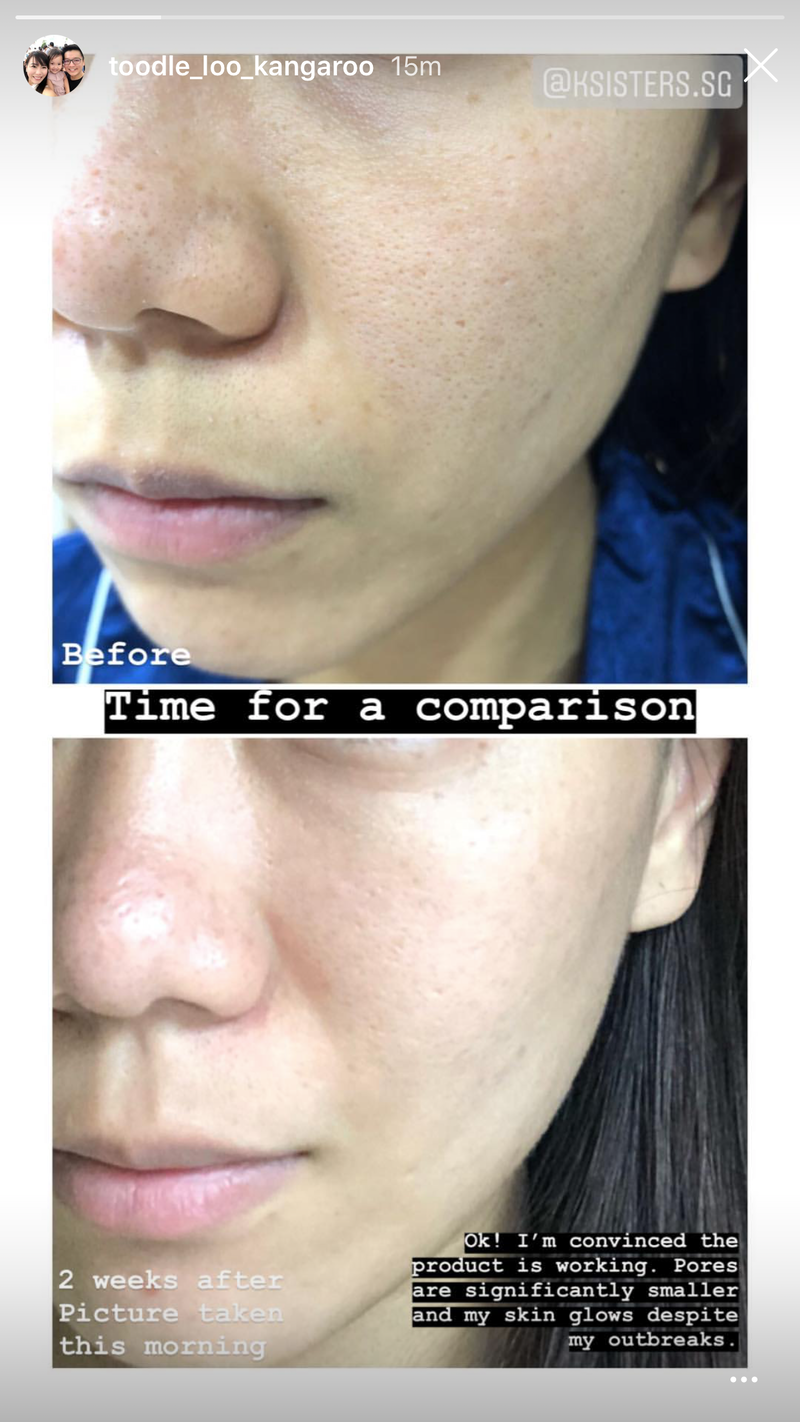 Bebetox Pore Tightening Program