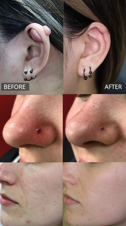 Keloid Scar Removal Kit Treatment For Ear Nose Piercings And