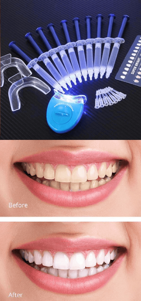 Family Deals Make up White Light Advanced Teeth Whitening - Now Teeth Whitening has Changed Forever!