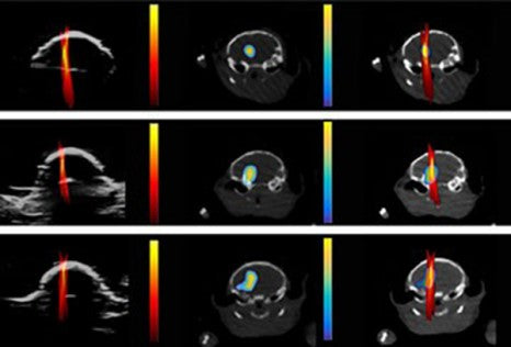 Ultrasound Can Monitor Exact Drug Dose Site in the Brain, SONO Month in Review