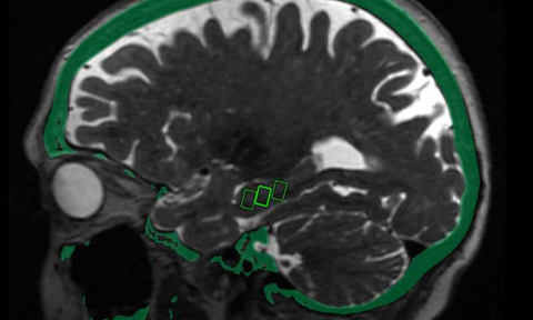 Focused Ultrasound May Open Door to Alzheimer's Treatment