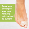 Is a Hammer Toe Splint Right for You?
