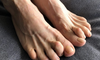 Types of Hammertoe Surgery and What You Can Expect for Recovery