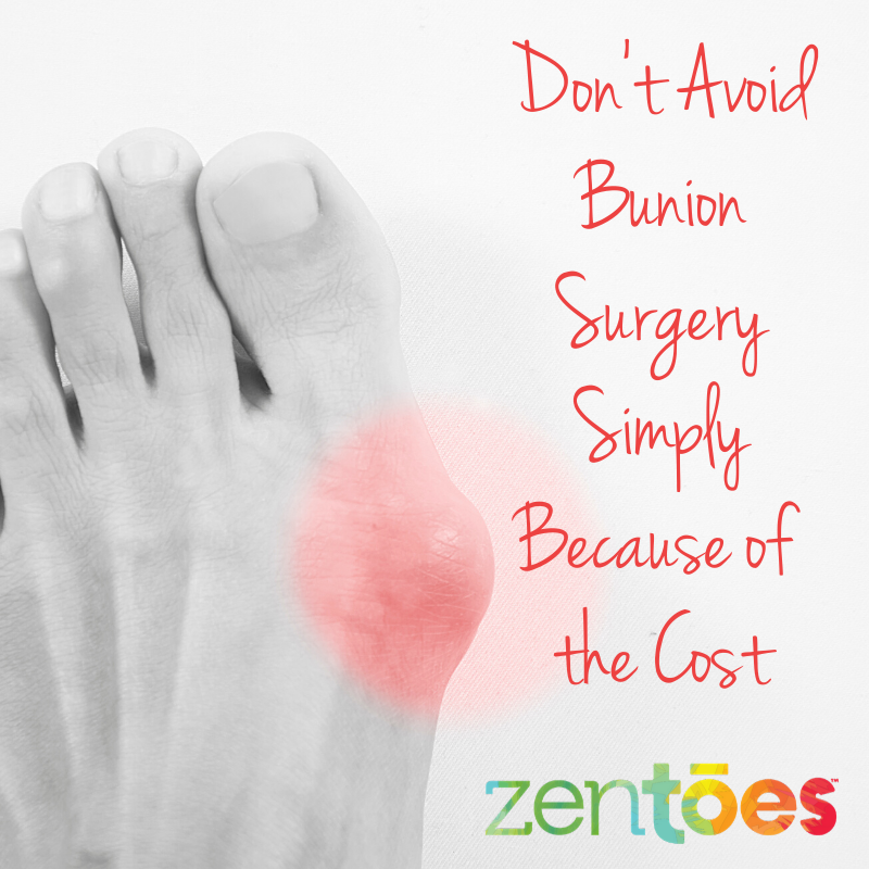 What You Need to Know About the Cost of Bunion Surgery
