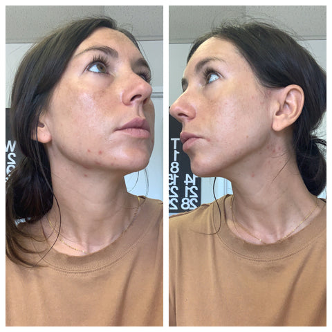 How I M Treating Hormonal Acne From The Inside Out Lark Skin Co