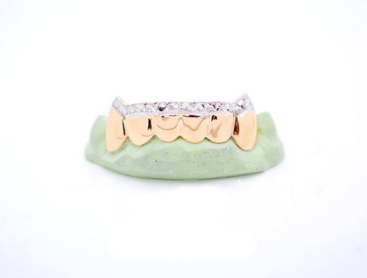 Custom 10k Gold n Silver Grillz Diamond Dust Diamond Cuts Tip 14k Gold Plated Fangz - FANATICS365