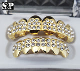 ICED OUT LAB DIAMOND WATCH & GOLD PT GRILLZ Bling Box - FANATICS365