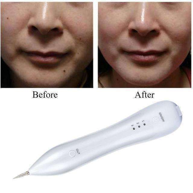 Skin Marker Pro™ - Eliminate Skin tags, Blemishes, Tattoos, Moles