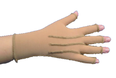Sigvaris Lymphoedema Glove (Left)