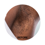 laser hair removal southfield michigan detroit