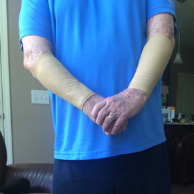 skin guards for thin skin on mans arms