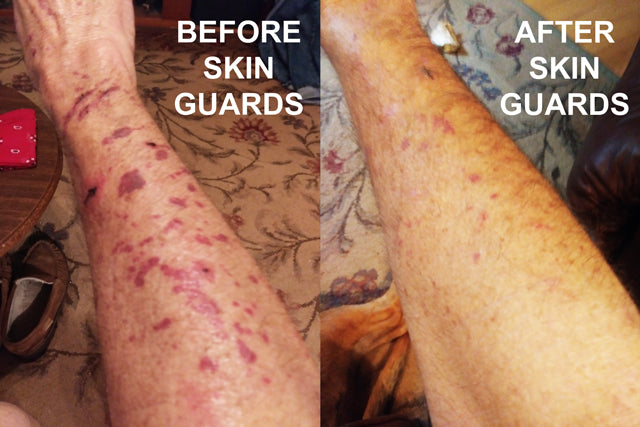 skin guards before and after thin skin covers