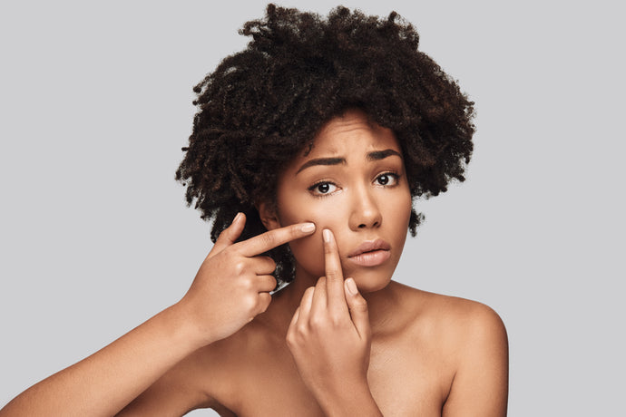 5 of the Most Common Acne Myths Busted