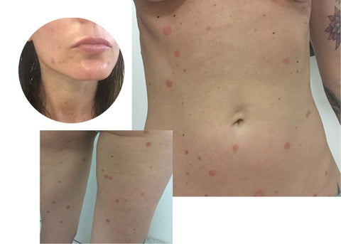 Psoriasis and Acne