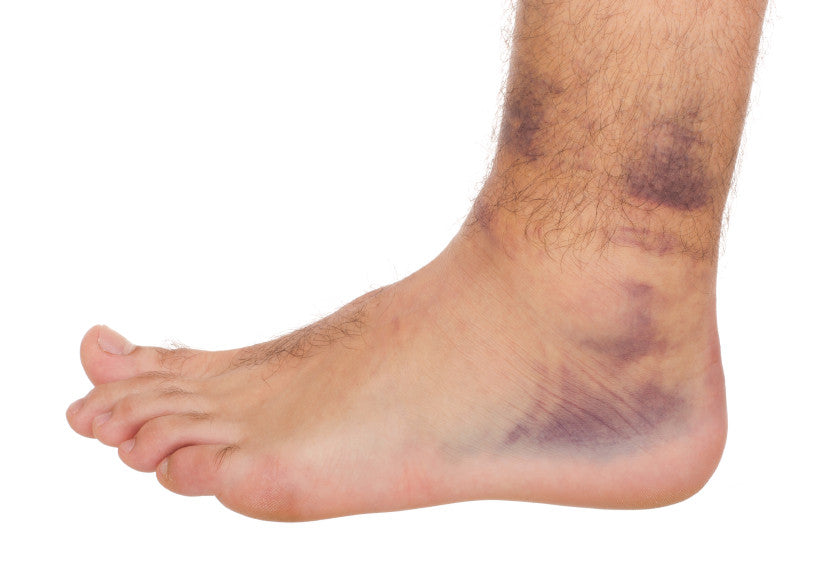 ligament restore fast sprain repair and relief the natural
