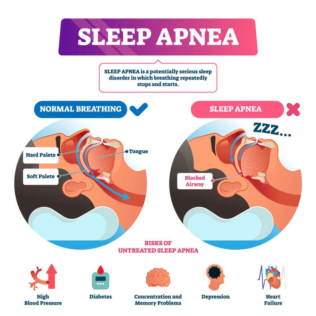 Flax-Linens-Blog-Sleep-Disorders-Sleep-Apnea-Infographic-Sleep-Health