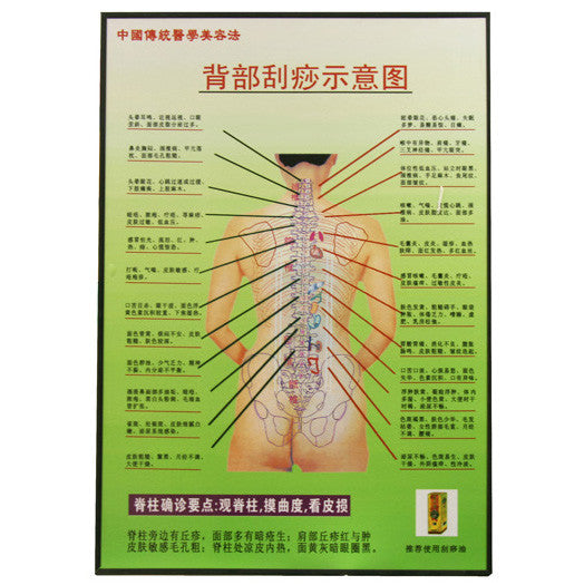 Acupuncture Hand Chart / G-03A1