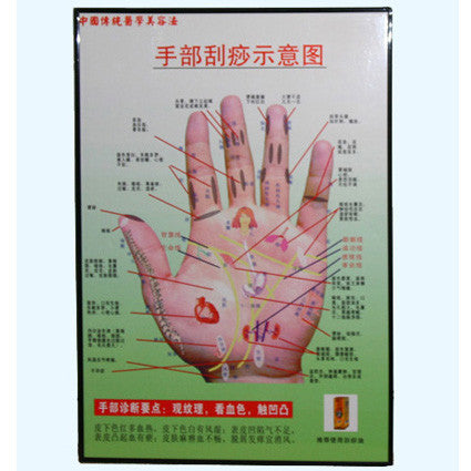 Acupuncture Hand Chart / G-03A
