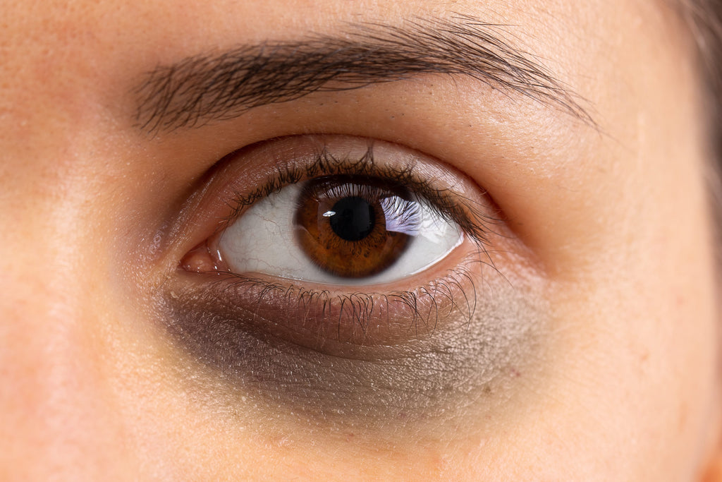 Dark Eye Circles and Its Causes