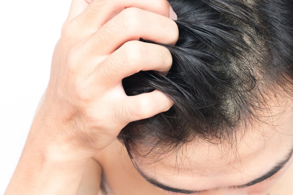 Itchy scalp natural remedies