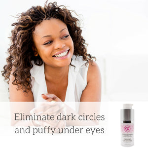 How to Lighten Dark Circles Under the Eyes