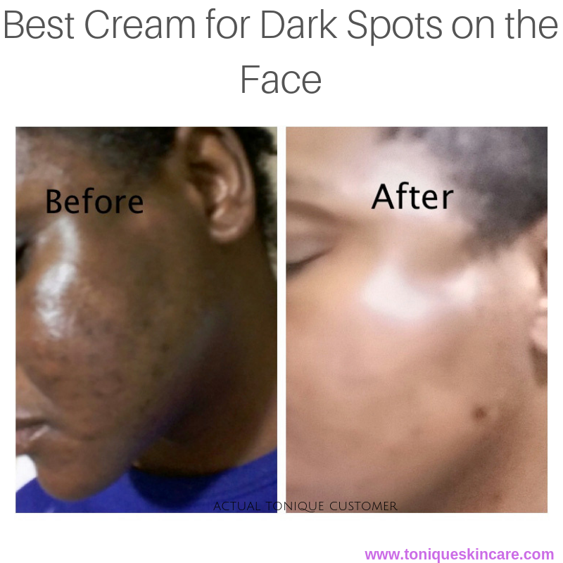Best Cream For Dark Spots On The Face